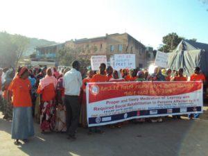 エチオピアで「世界ハンセン病の日」の記念イベントが開催されました