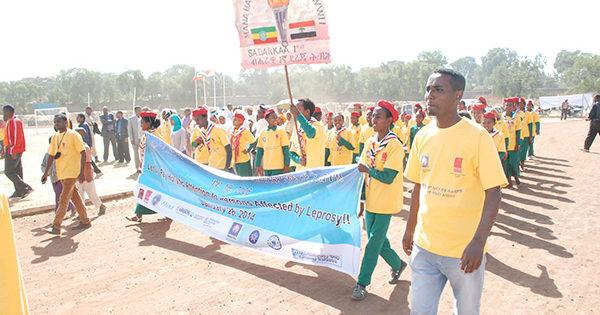 「世界ハンセン病の日」を記念して ~エチオピア~