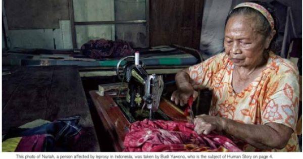 58号 大使メッセージ:ハンセン病と顧みられない熱帯病